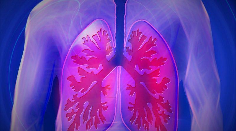 Nebezpečný zápal plic. Jaké jsou příznaky nemoci?
